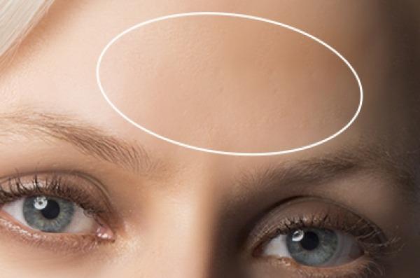 Dew Aesthetics, Chester   IPL Laser Hair Removal   Forehead