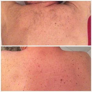 Dew Aesthetics, Chester | Laser Liposculpture | IPL Laser Hair Removal - before/after